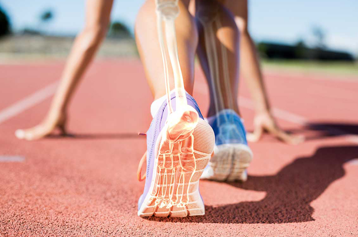 Women Athletics: How Your Sport Affects Your Bone Health